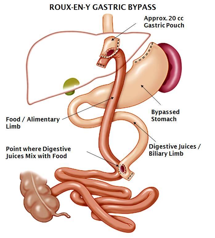 Internal Roux-en-Y Gastric Bypass stomach diagram