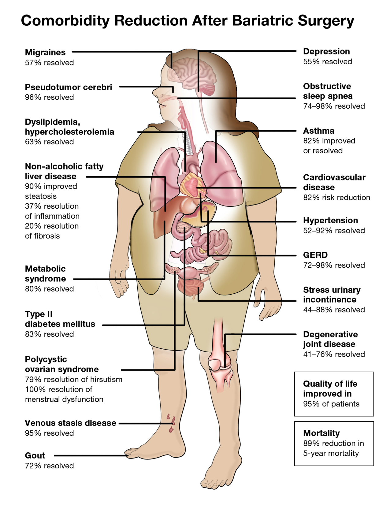 Effects of Weight Loss Surgery Weight and Metabolic Solutions AustraliaWeight and Metabolic Solutions Australia