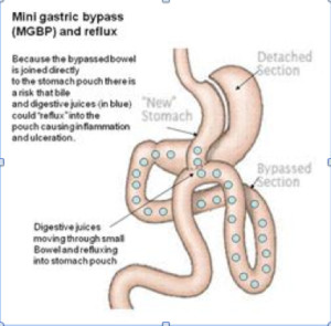 Health benefits diagram of the mini gastric bypass (MGBP) with food
