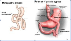 Roux-en-Y gastric bypass procedure (RYGBP) VS mini gastric bypass (MGBP)